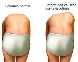 2nanos-escoliosis