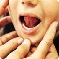 ¿Para qué sirve la Terapia Miofuncional en niños?