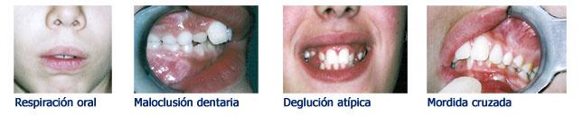 ortodoncia-y-terapia-miofuncional